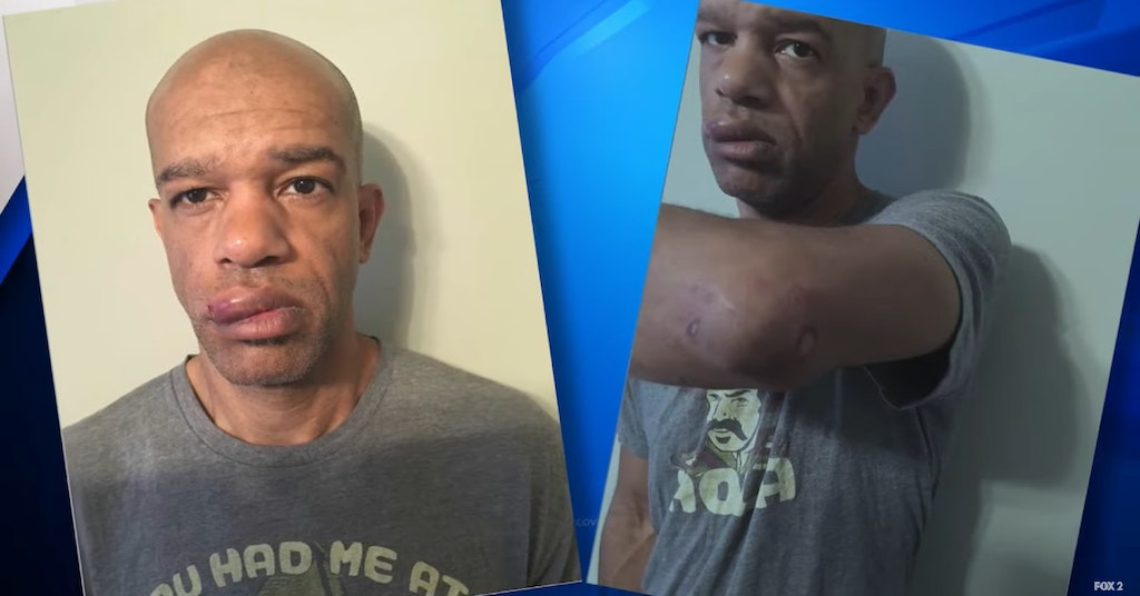 Detective Luther Hall showing his injuries after being beaten by fellow cops while undercover